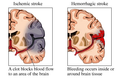 Picture of hemorrhagic versus ischemic stroke