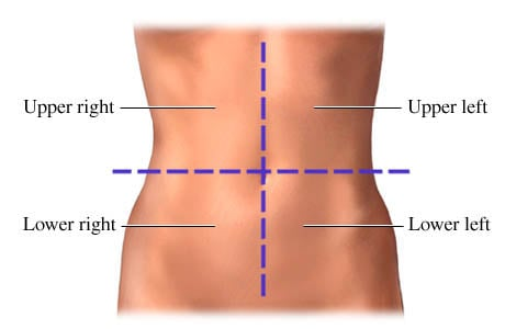 Picture of the four quadrants (locations) of abdominal pain