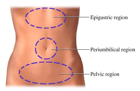 Picture of the three regions (locations) of abdominal pain