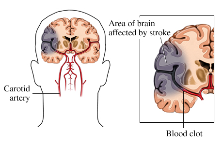 Picture of ischemic stroke