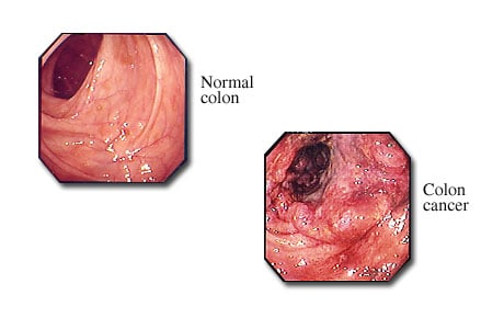 Photograph of colon cancer visible with a colonoscope