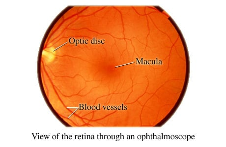 Picture of the retina