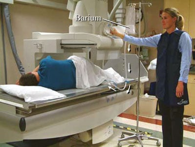 Photo of a man lying on his side lying on X-ray machine having a barium enema
