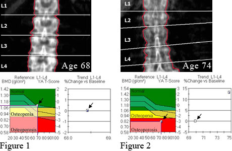 Bone mineral density of spine