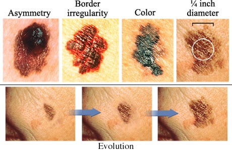 Picture of the ABCDEs of melanoma
