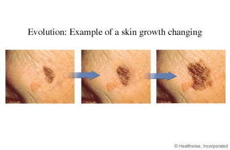 Photos of the evolution of skin cancer