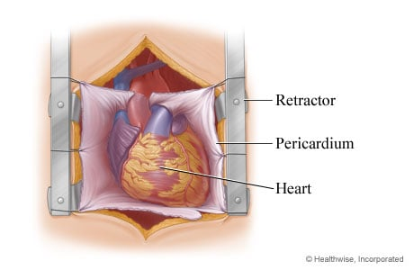 Picture of the heart exposed for aortic valve replacement