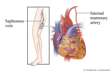 Picture of grafts that restore blood flow to the heart