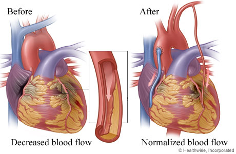 Picture of normalized blood flow restored by bypass grafts