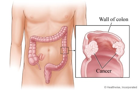 Picture of cancer in the wall of the descending colon