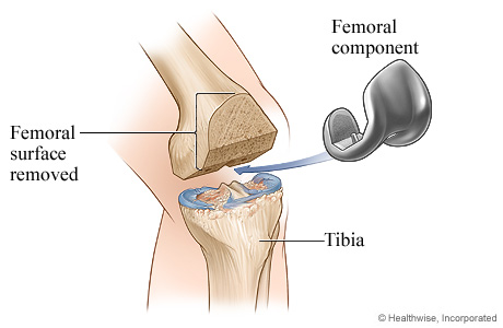 Picture of knee replacement surgery: Femoral component