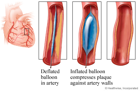 Picture of angioplasty