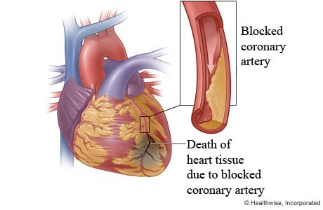 Picture of damage to the heart from a heart attack