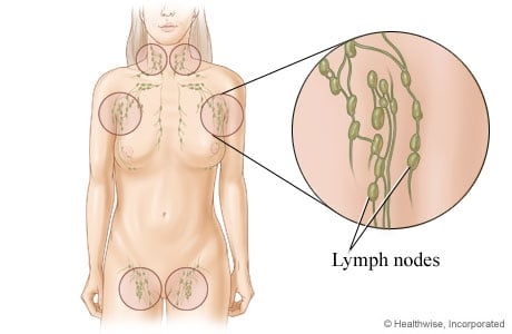 Picture of lymph nodes and their locations in the body