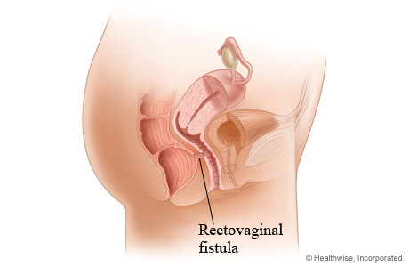 Picture of a rectovaginal fistula