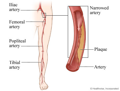 Picture of peripheral arterial disease
