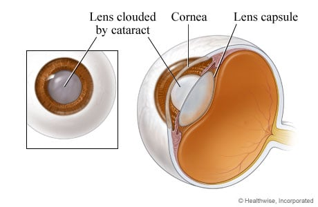 Picture of an eye lens clouded by a cataract (close-up)