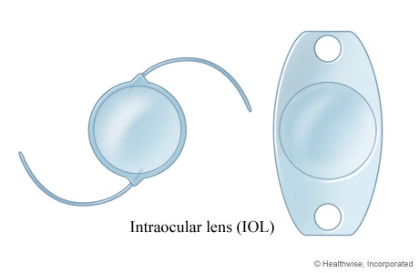 Picture of two examples of intraocular lenses (IOLs)