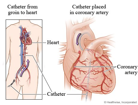 Picture of a catheter inserted into the area of arterial blockage