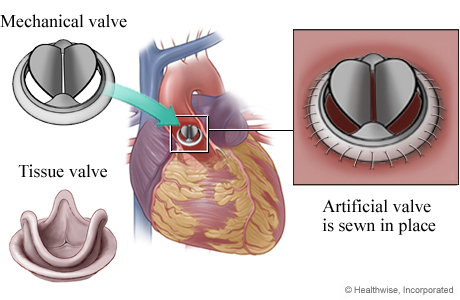 Picture of the artificial valve sewn in place for aortic valve replacement