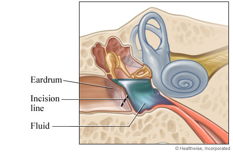 Picture of an incision made in the eardrum