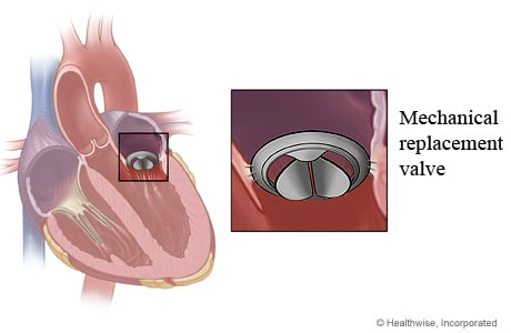 Picture of a mechanical replacement valve in the heart