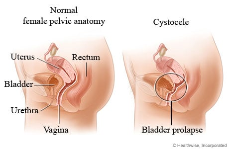 Picture of cystocele