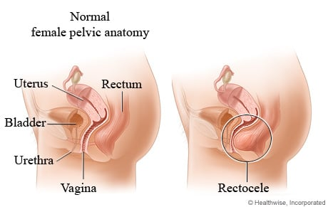 Picture of rectocele