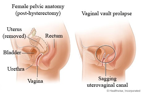 Picture of vaginal vault prolapse
