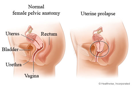 Picture of uterine prolapse