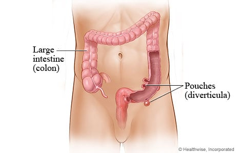 Picture of diverticula in the large intestine