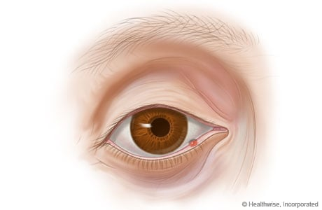 Picture of a stye