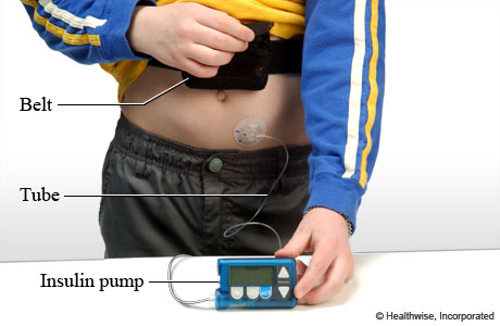 Photo of an insulin pump