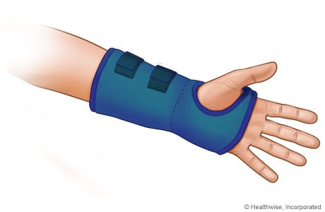 Picture of a wrist splint