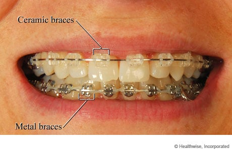 Photo of ceramic and metal braces