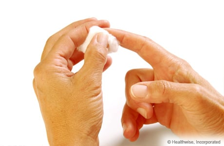 Photo of putting pressure on fingertip to stop bleeding