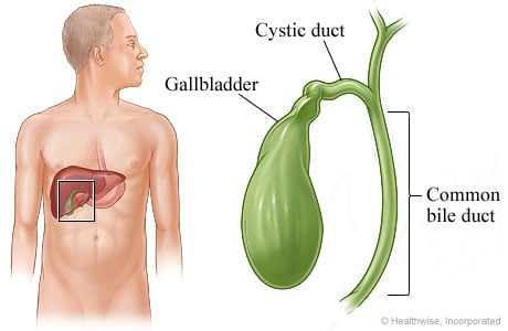 Picture of gallbladder, cystic duct, and common bile duct