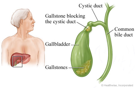 Picture of gallbladder and gallstones