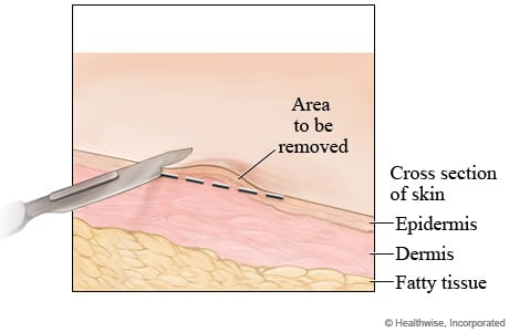 Picture of a shave skin biopsy