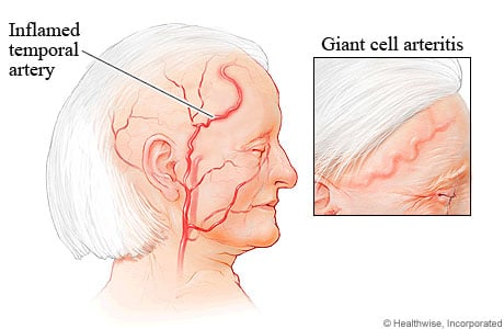 Picture of giant cell arteritis