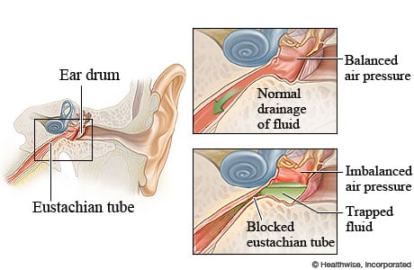 Picture of normal and blocked eustachian tubes