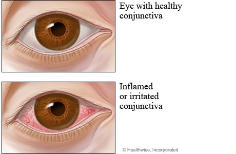Picture of healthy conjunctiva compared to conjunctivitis (pinkeye)