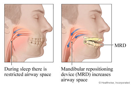 Picture of a mandibular repositioning device