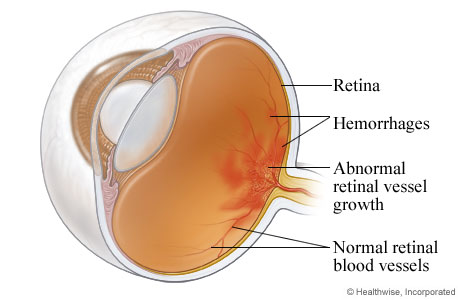 Picture of diabetic retinopathy
