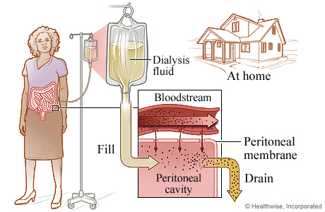 Picture of the process of peritoneal dialysis
