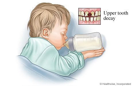 Picture of bottle mouth tooth decay