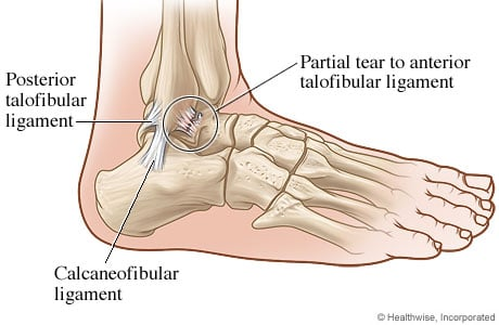 Picture of an ankle with a ligament tear