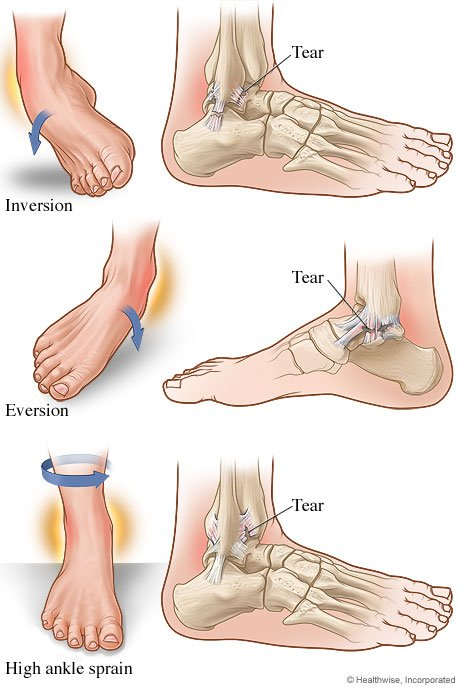 Picture of types of ankle sprains