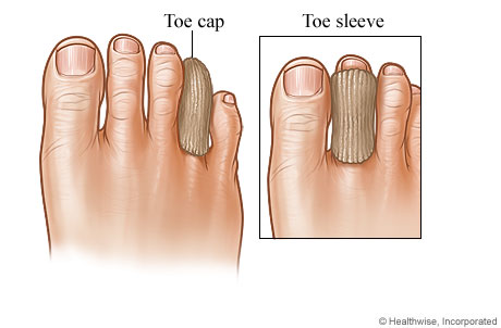 Picture of a toe cap and toe sleeve for calluses and corns