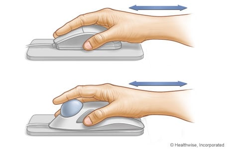 Picture of proper hand and wrist position for mouse and trackball use